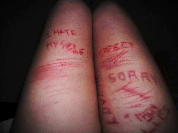 emo cuts wrists